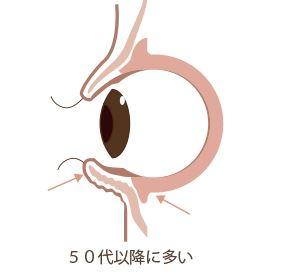 f:id:mizunomori-biyougeka:20160913112948j:plain