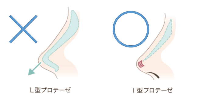 f:id:mizunomori-biyougeka:20160929153018p:plain