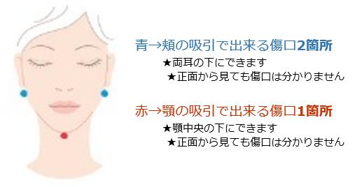 f:id:mizunomori-biyougeka:20161011145644p:plain