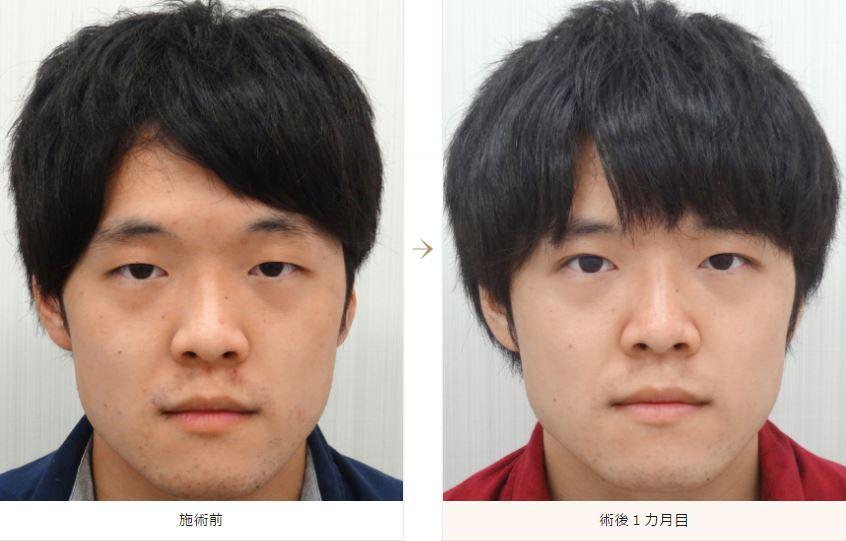 f:id:mizunomori-biyougeka:20161019103022j:plain
