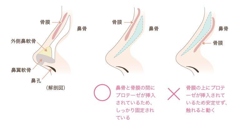 f:id:mizunomori-biyougeka:20161019103123j:plain