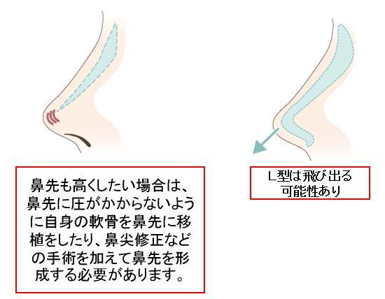 f:id:mizunomori-biyougeka:20161019103151j:plain