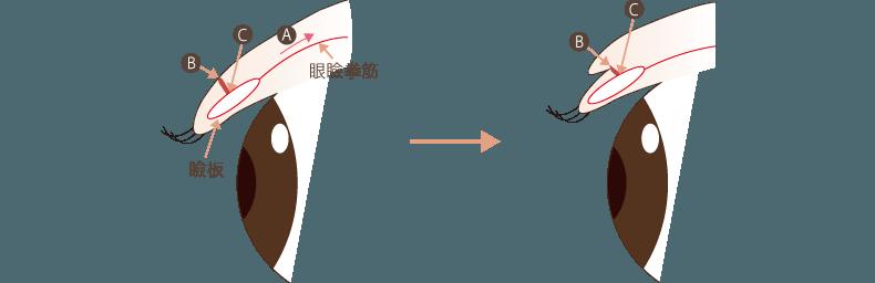 f:id:mizunomori-biyougeka:20161108110522p:plain