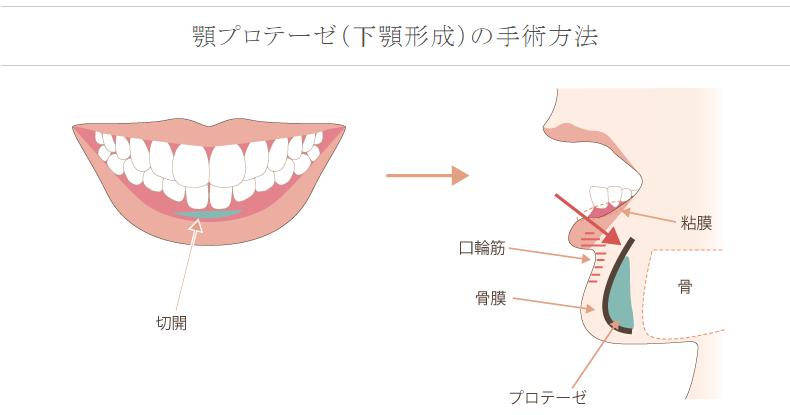 f:id:mizunomori-biyougeka:20161116103002p:plain