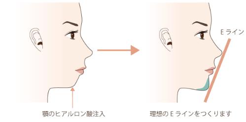 f:id:mizunomori-biyougeka:20161116104452p:plain