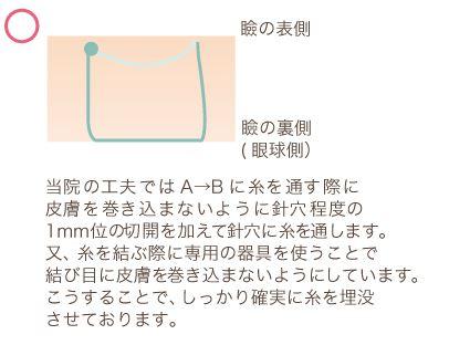 f:id:mizunomori-biyougeka:20161118131323j:plain