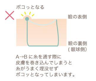 f:id:mizunomori-biyougeka:20161118131326j:plain