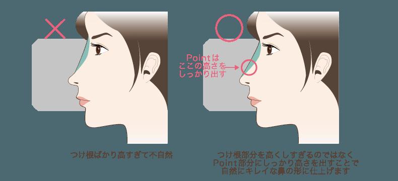 f:id:mizunomori-biyougeka:20161129152936p:plain