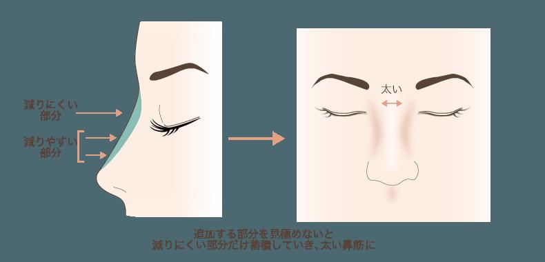 f:id:mizunomori-biyougeka:20161129152950p:plain