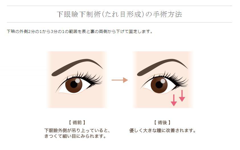f:id:mizunomori-biyougeka:20161214133856j:plain