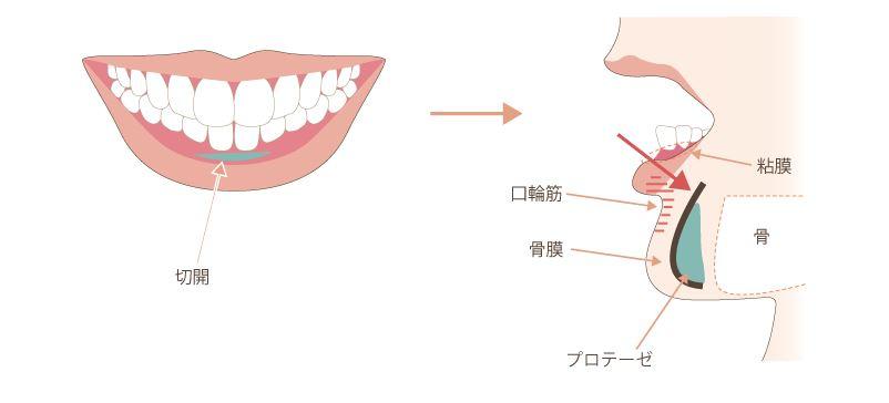 f:id:mizunomori-biyougeka:20170118162057j:plain