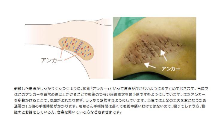 f:id:mizunomori-biyougeka:20170223145255j:plain