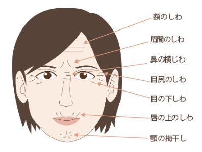 f:id:mizunomori-biyougeka:20170228121723j:plain