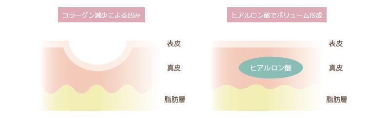 f:id:mizunomori-biyougeka:20170329101705j:plain