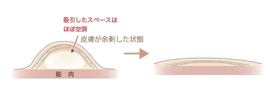 f:id:mizunomori-biyougeka:20170426114736j:plain