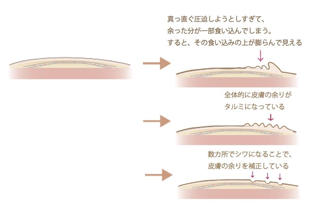 f:id:mizunomori-biyougeka:20170426114751j:plain