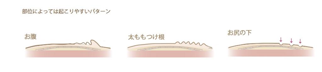 f:id:mizunomori-biyougeka:20170426115028j:plain