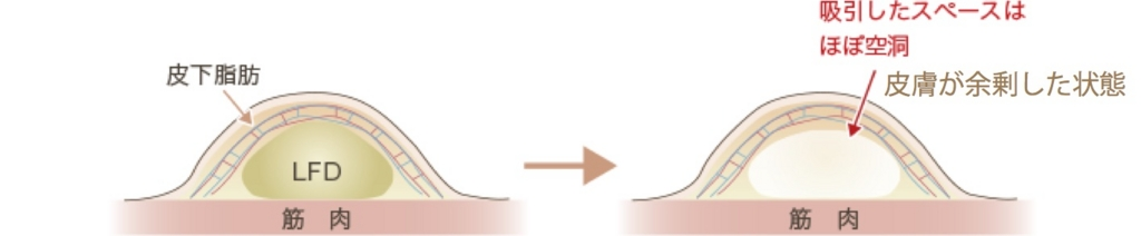 f:id:mizunomori-biyougeka:20170426115336j:plain