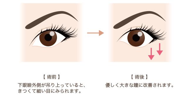 f:id:mizunomori-biyougeka:20170502164516p:plain
