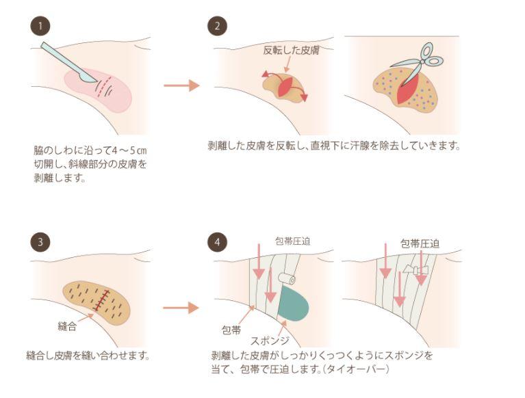 f:id:mizunomori-biyougeka:20170517135225j:plain