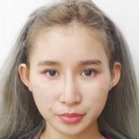 f:id:mizunomori-biyougeka:20170524160552j:plain
