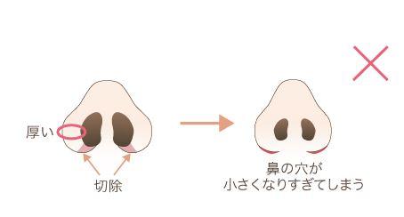 f:id:mizunomori-biyougeka:20170603163418j:plain
