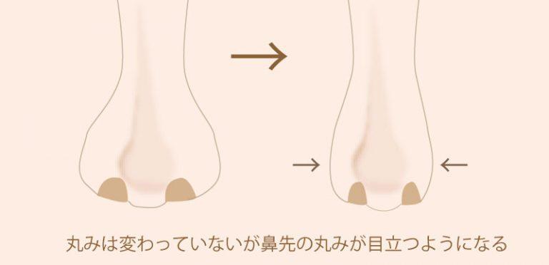f:id:mizunomori-biyougeka:20170603163516j:plain