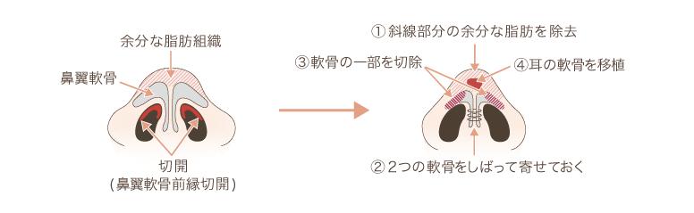 f:id:mizunomori-biyougeka:20170614114626p:plain