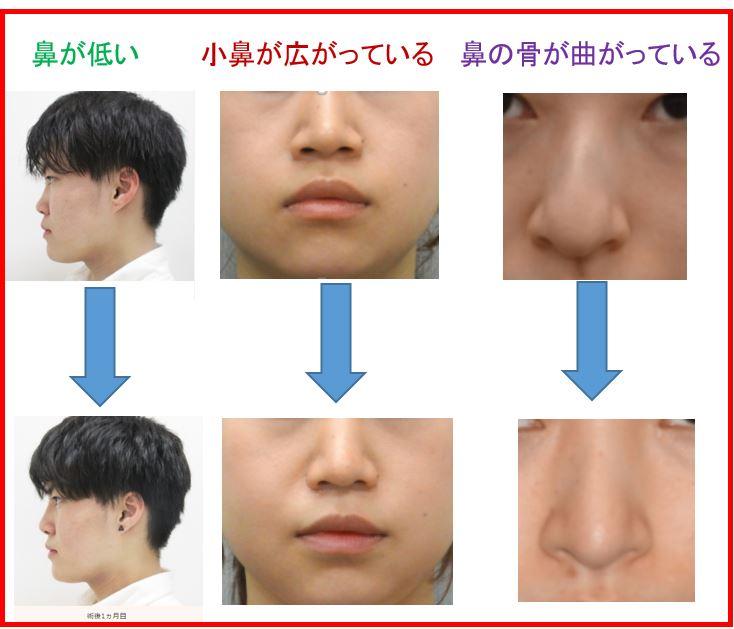 f:id:mizunomori-biyougeka:20170621160143j:plain