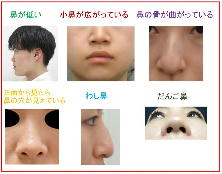f:id:mizunomori-biyougeka:20170621161451j:plain
