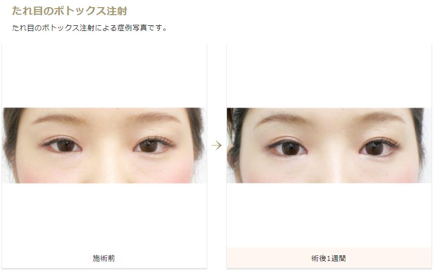 f:id:mizunomori-biyougeka:20170801122937p:plain