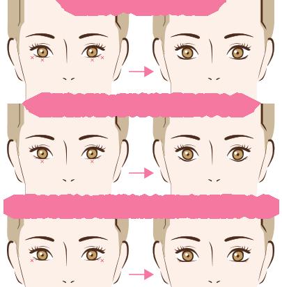 f:id:mizunomori-biyougeka:20170801125644p:plain