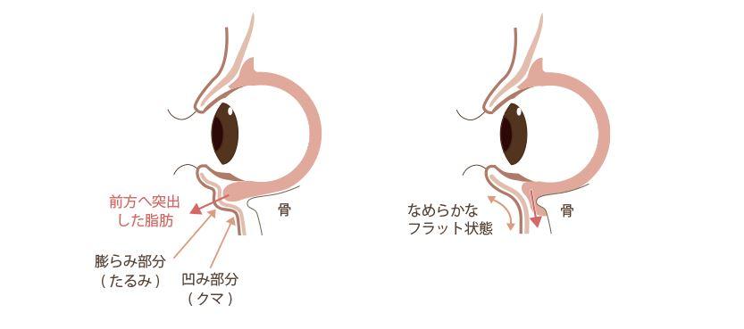 f:id:mizunomori-biyougeka:20170817164314j:plain