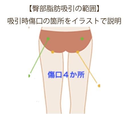 f:id:mizunomori-biyougeka:20170902110757j:plain