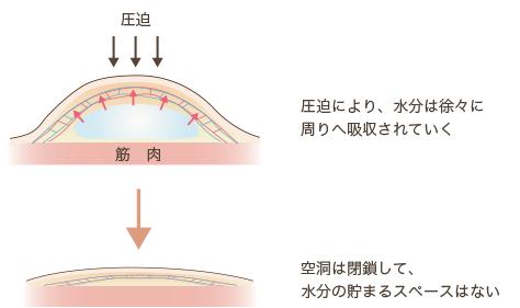 f:id:mizunomori-biyougeka:20170907131137p:plain