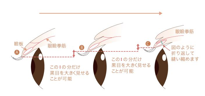 f:id:mizunomori-biyougeka:20170927121105j:plain