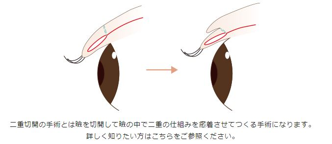 f:id:mizunomori-biyougeka:20170927121228j:plain