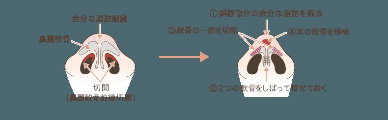 f:id:mizunomori-biyougeka:20171013111530p:plain