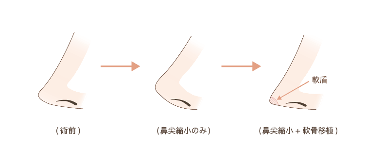 f:id:mizunomori-biyougeka:20171013112049p:plain
