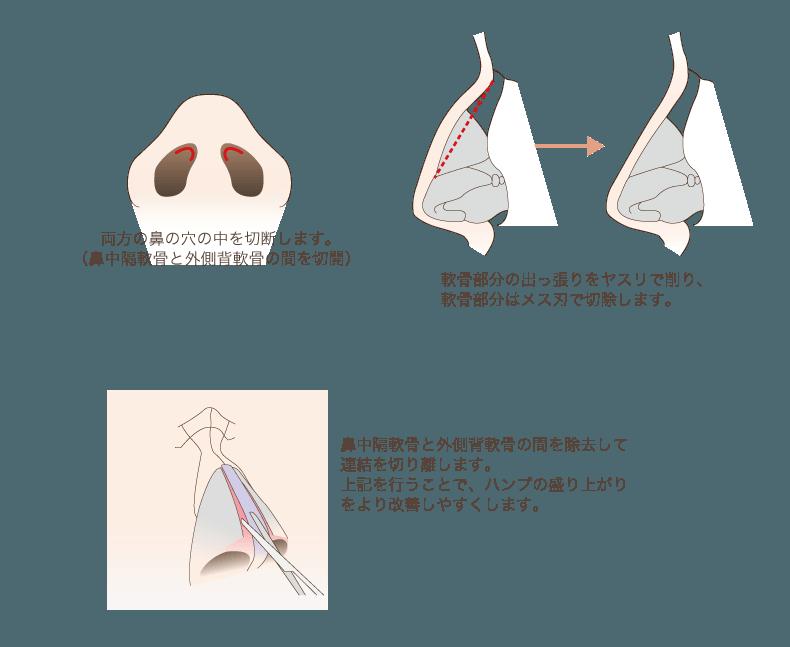 f:id:mizunomori-biyougeka:20171013112526p:plain