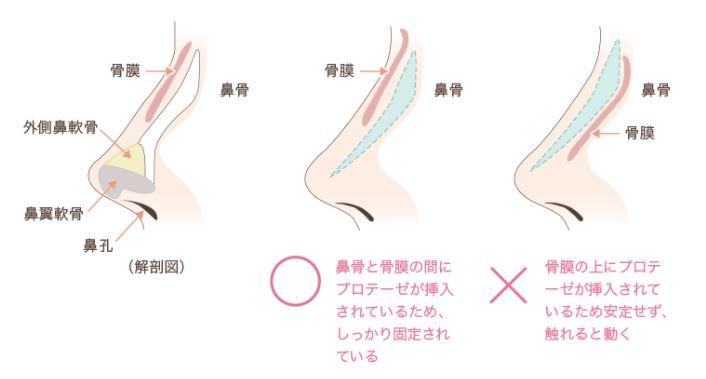 f:id:mizunomori-biyougeka:20171025163450j:plain