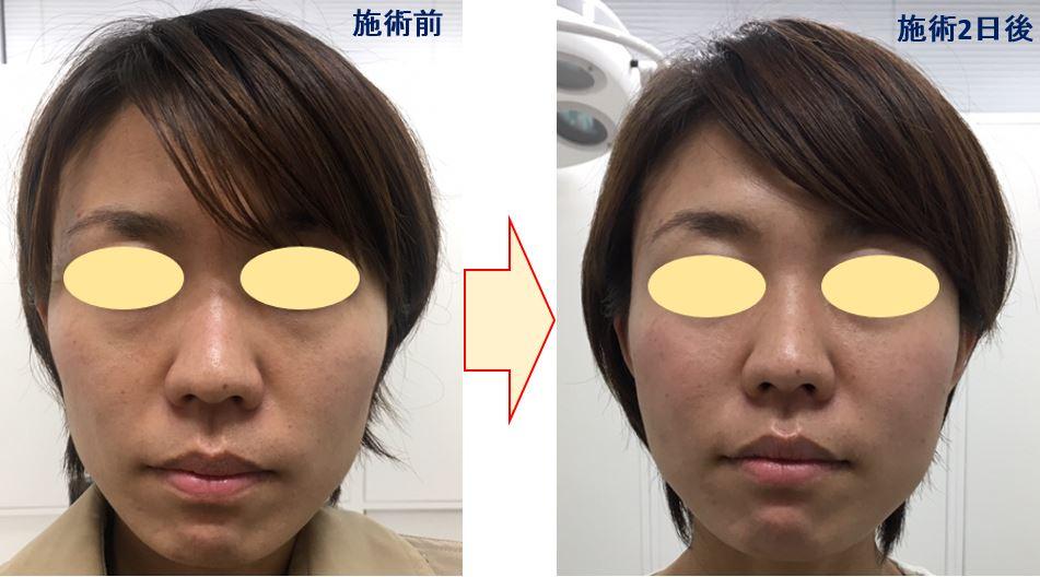 f:id:mizunomori-biyougeka:20171102131659j:plain
