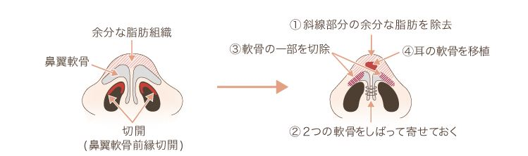 f:id:mizunomori-biyougeka:20171122102223j:plain