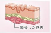 f:id:mizunomori-biyougeka:20171129154044j:plain