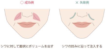 f:id:mizunomori-biyougeka:20171129154237j:plain