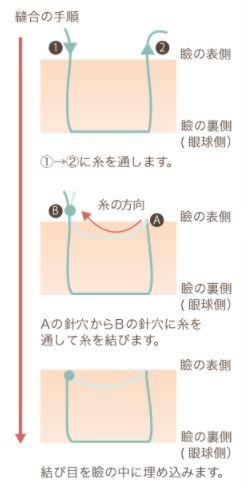 f:id:mizunomori-biyougeka:20180115145215j:plain
