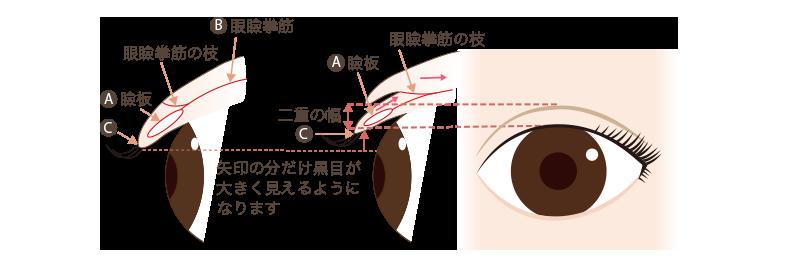 f:id:mizunomori-biyougeka:20180320100845p:plain