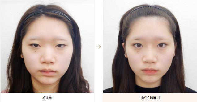 f:id:mizunomori-biyougeka:20180418101246j:plain