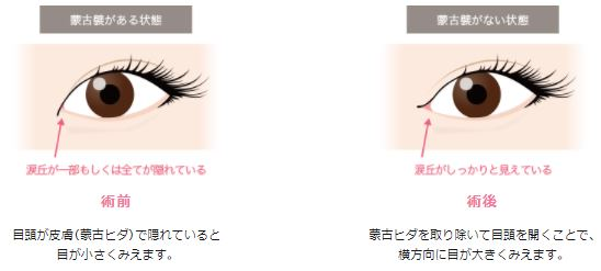 f:id:mizunomori-biyougeka:20180418101655j:plain