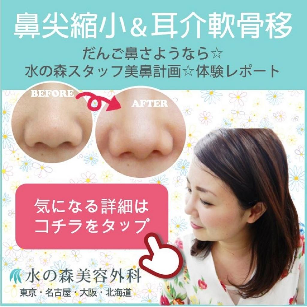 f:id:mizunomori-biyougeka:20180511102323j:plain